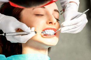 口腔内の検査
