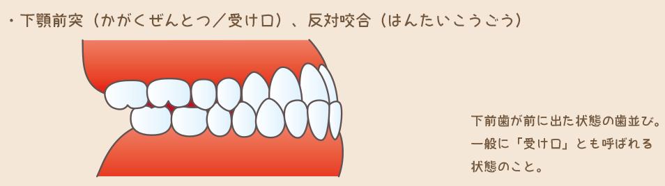 1下顎前突