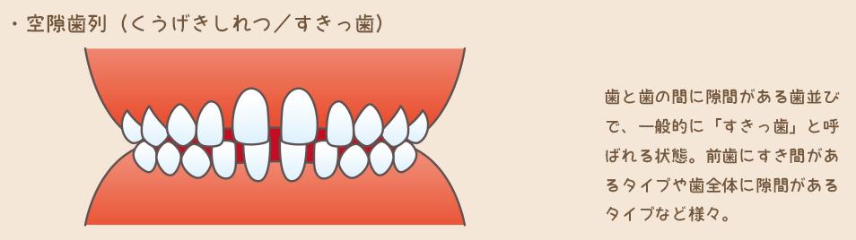 6空隙歯列