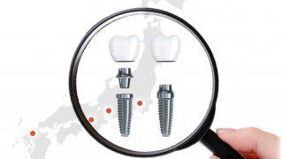 最安で良心的なインプラント治療院はどこ?現役歯科医師が5大都市の医院を徹底比較!