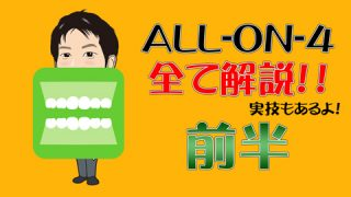 ALL-on-4(オールオンフォー)って入れ歯?インプラント?どんな治療?