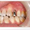 ぎらつく銀歯を保険で白くできるって知ってる?費用と方法まとめ